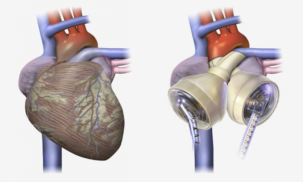 Device Animation and Illustration |Prosthetic Heart