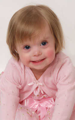 introduction-complications-symptoms-risk-factors-of-down-syndrome