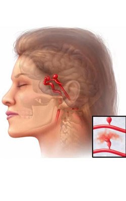 brain aneurysm - introduction and symptoms | healthcare articles, Human body