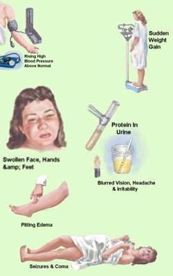 Symptoms Of Preeclampsia And Associated Complications